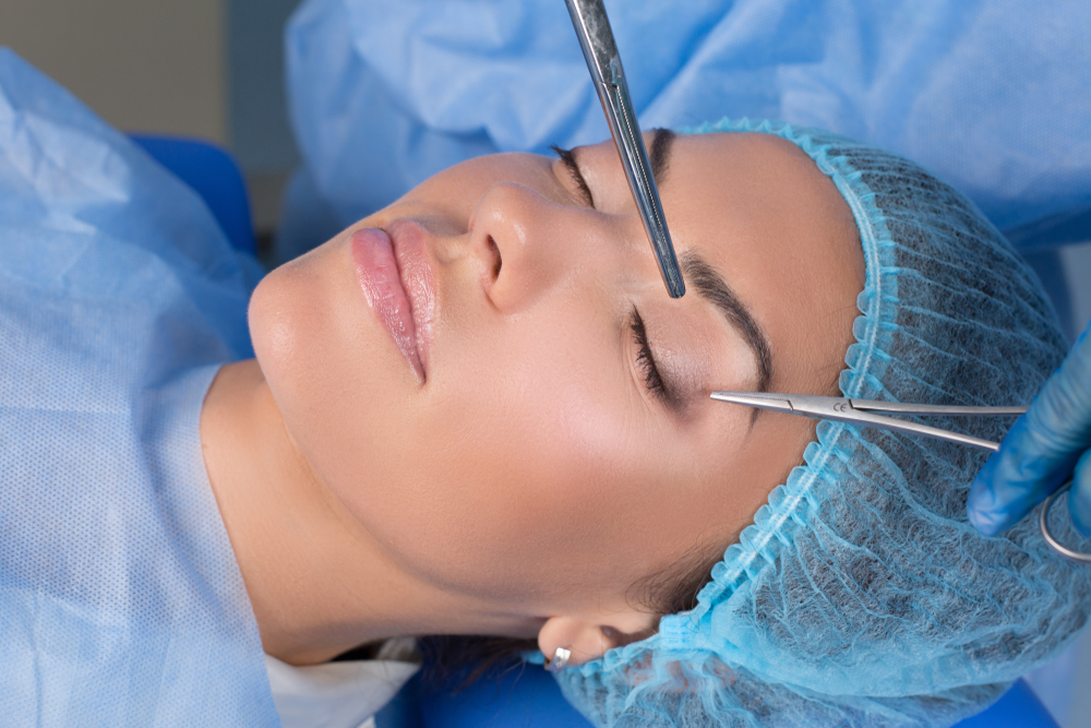 Операция блефаропластика