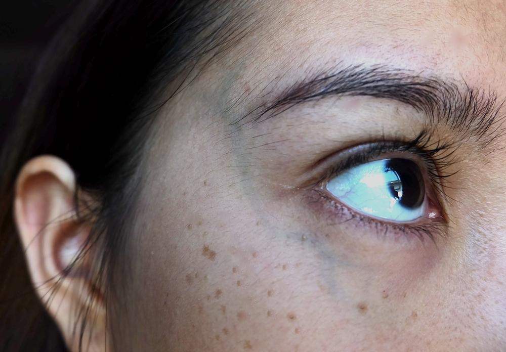 Кератоз на лице